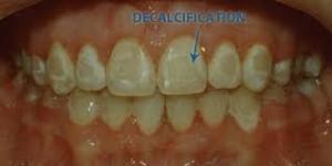 White spot akibat cara menyikat gigi yang salah