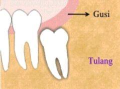 gambar gigi impaksi dalam tulang sebagian