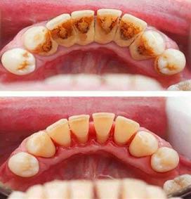 scaling dan polishing karang gigi